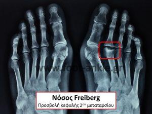 Freiberg's infraction