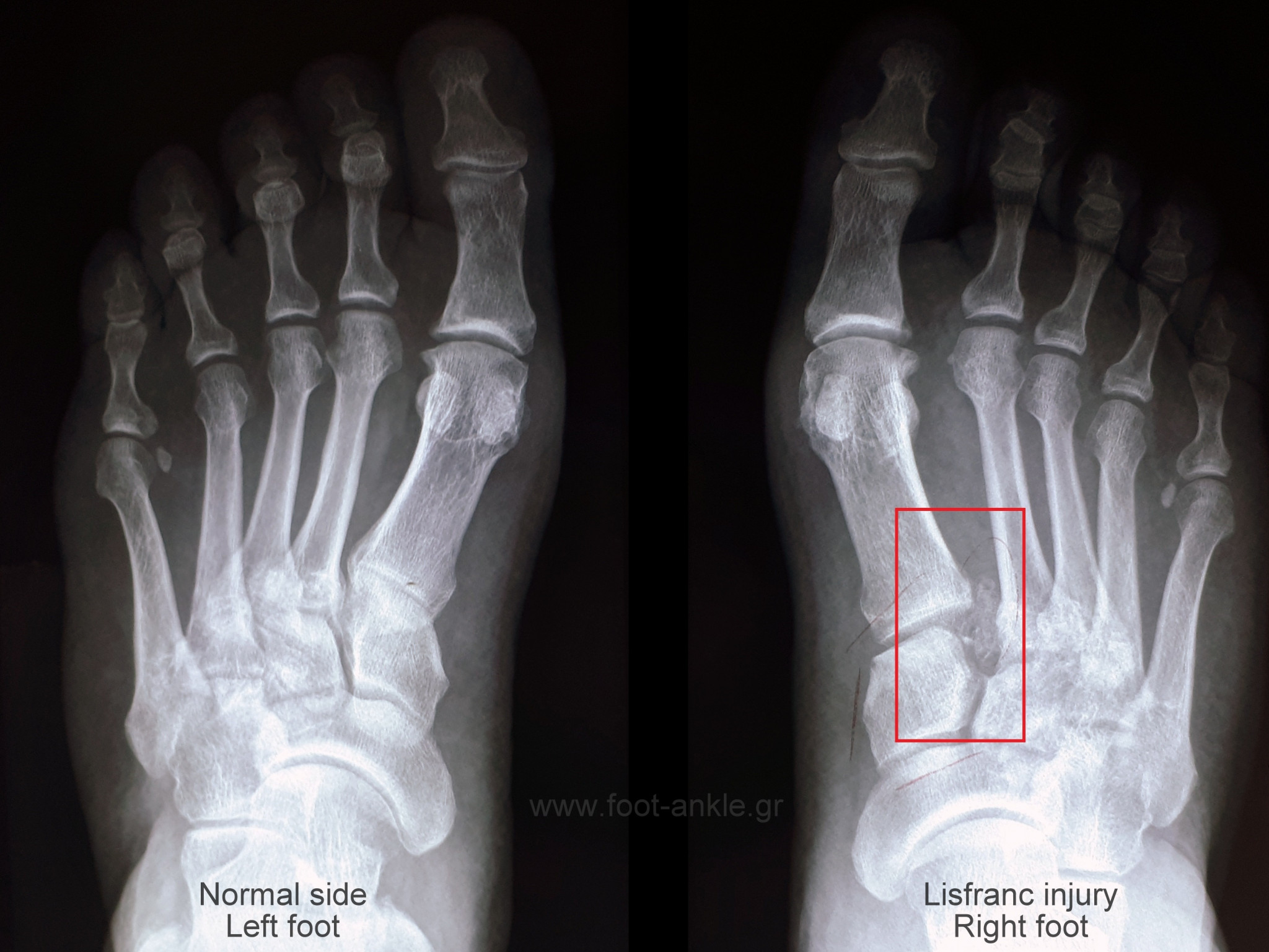 Lisfranc injury. Comparative weight bearing radiographs XRays showing a Lisfranc injury of the right foot (red box)