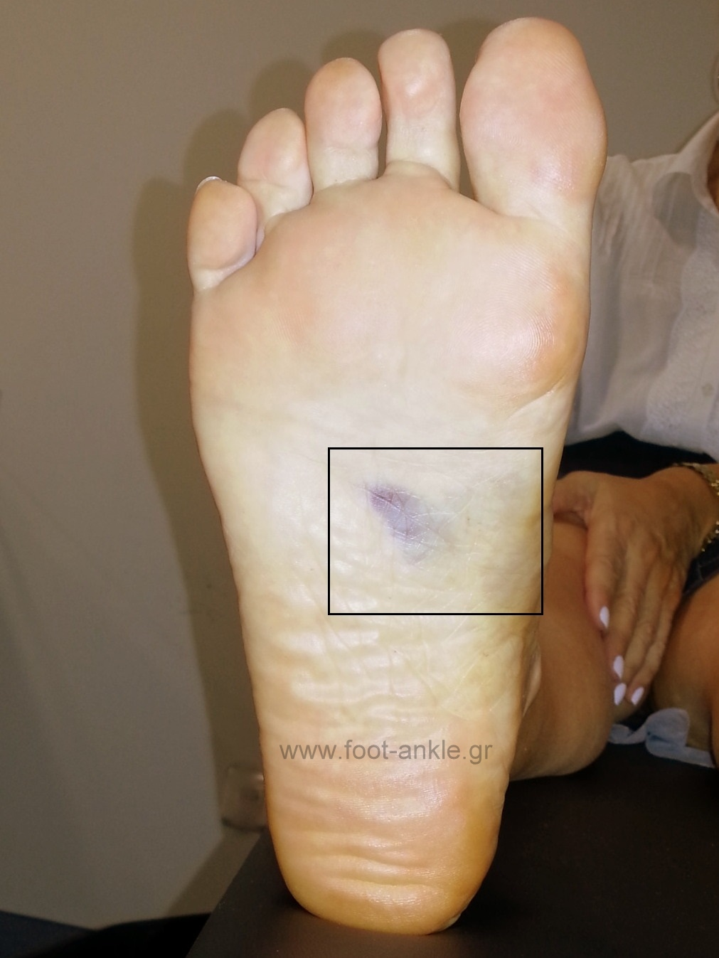 Lisfranc injury clinical picture. Plantar ecchymosis sign.