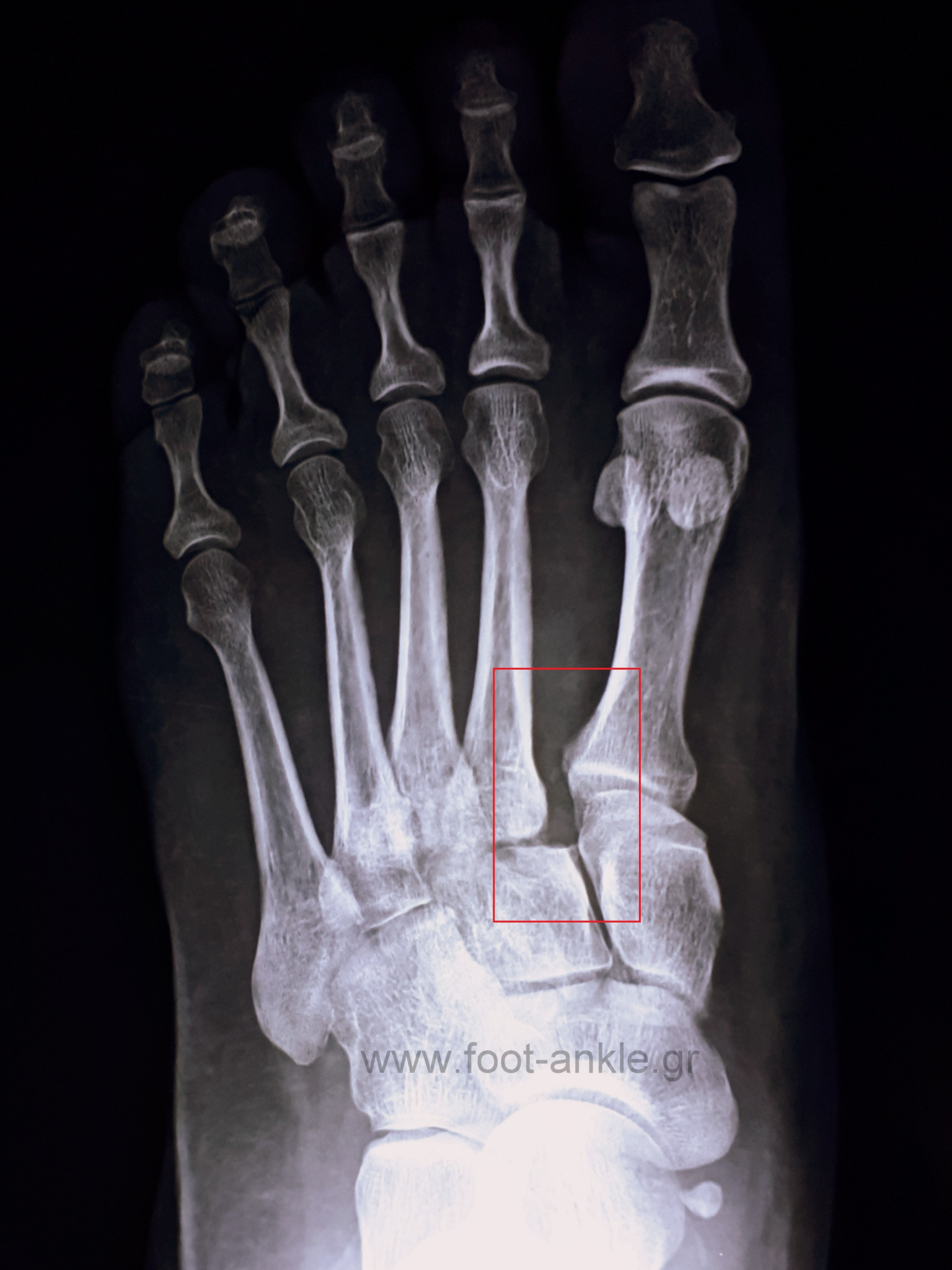 Lisfranc injury radiograph. XRay of foot with purely ligamentous Lisfranc injury at the base of the first and second metatarsals (red box).